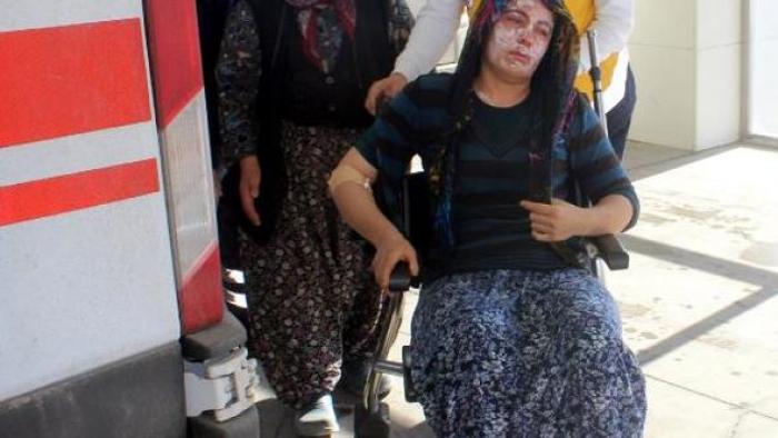 Karaman'da Düdüklü Tencere Patladı: 1 Yaralı