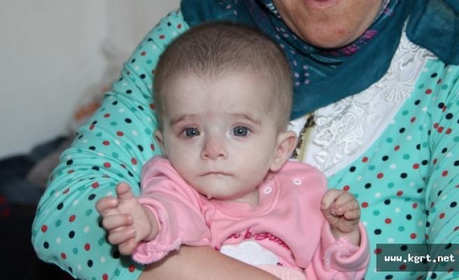 Kanser Hastası 10 Aylık Alime'nin Bakışları Yürek Yakıyor