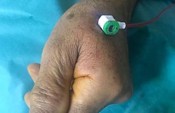 Hastanede İlk Kez El Sırtından Anjiyografi Yapıldı